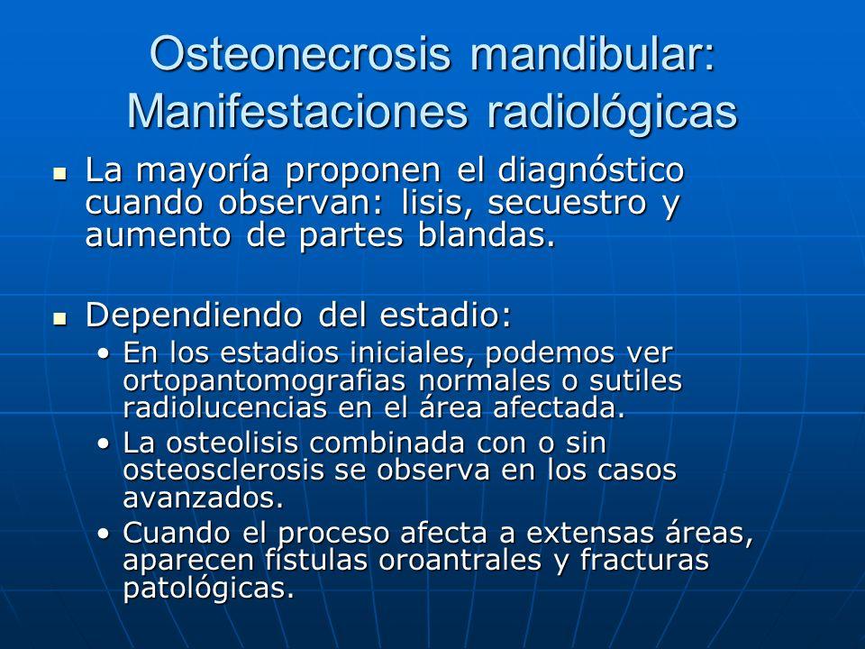 Osteonecrosis mandibular: Manifestaciones radiológicas