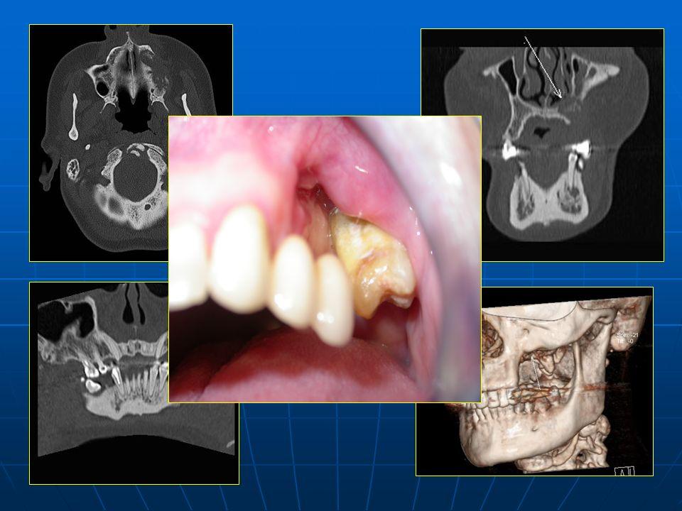 Lesión lítica de bordes mal definidos con fragmentación y secuestro óseo.