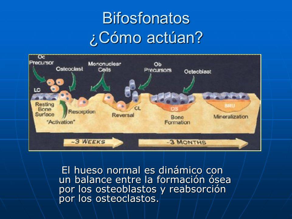 Bifosfonatos ¿Cómo actúan