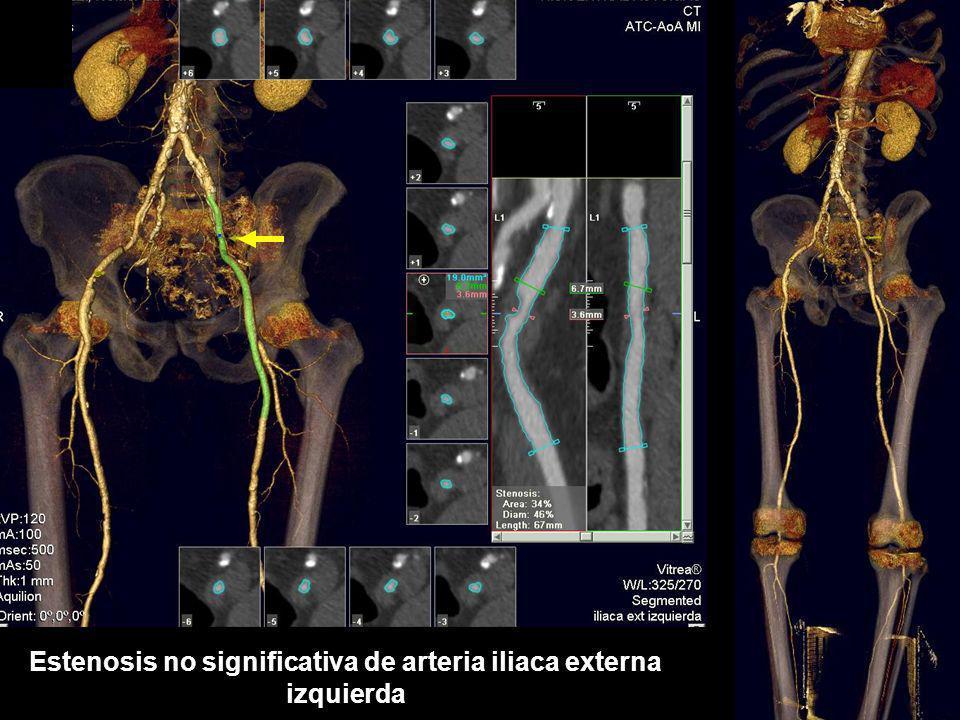 Estenosis no significativa de arteria iliaca externa izquierda