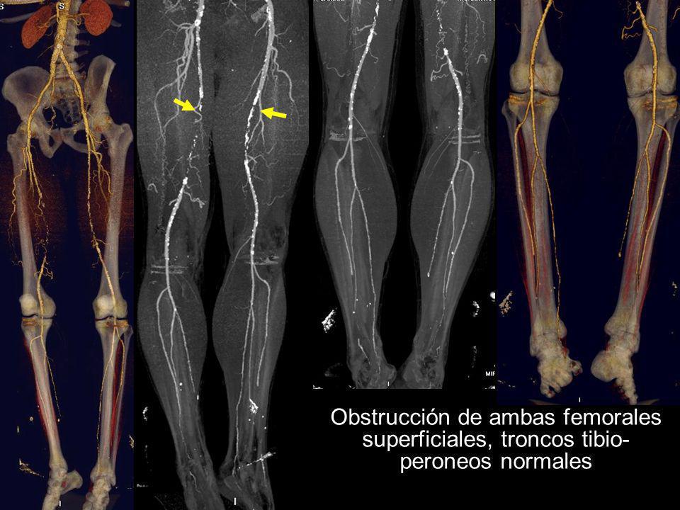 Obstrucción de ambas femorales superficiales, troncos tibio-peroneos normales
