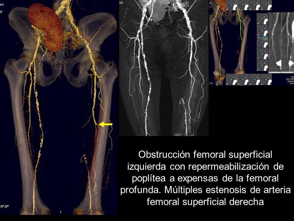 Obstrucción femoral superficial izquierda con repermeabilización de poplítea a expensas de la femoral profunda.
