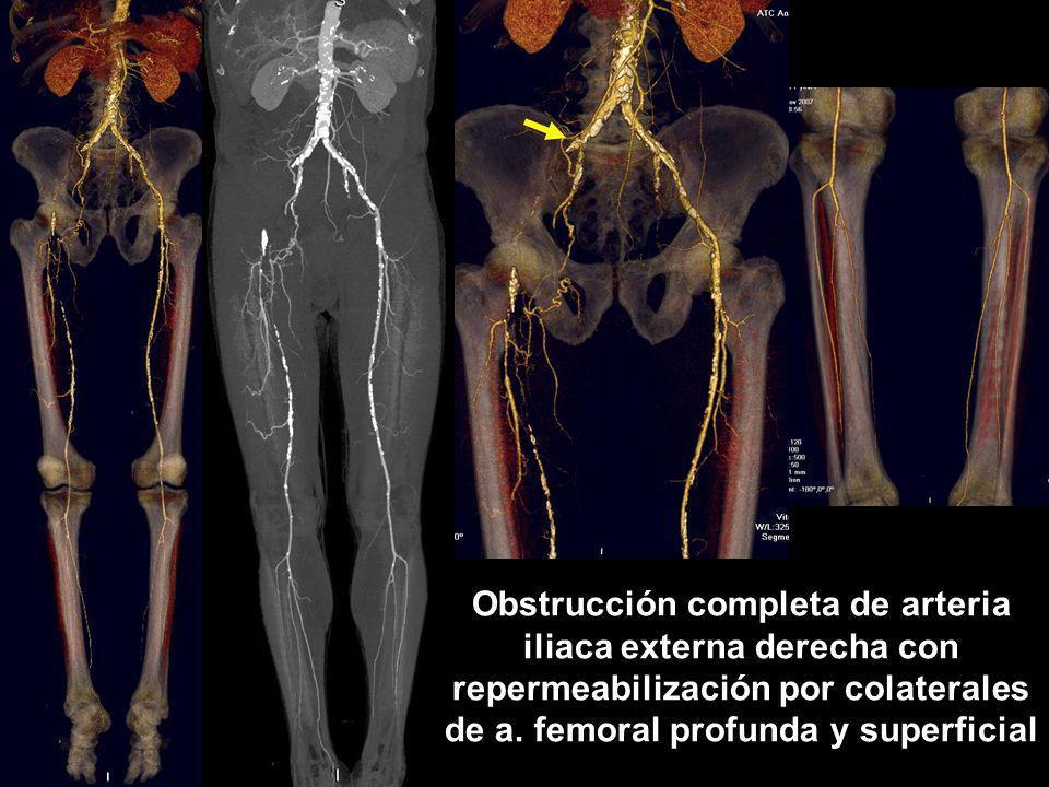 Obstrucción completa de arteria iliaca externa derecha con repermeabilización por colaterales de a.