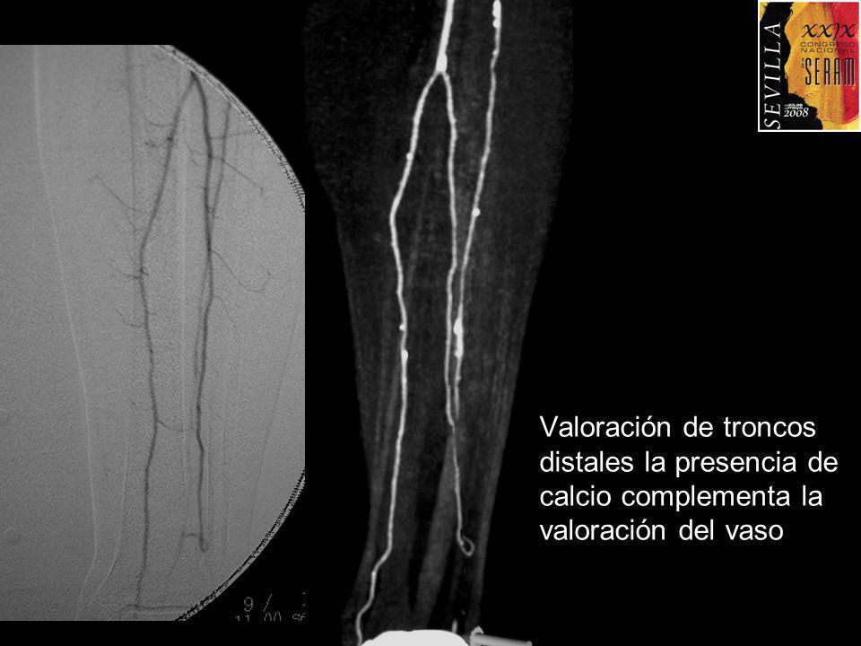 Valoración de troncos distales la presencia de calcio complementa la valoración del vaso