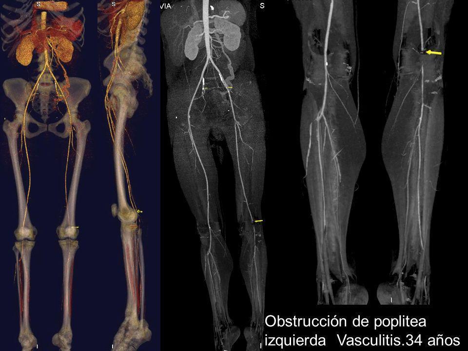 Obstrucción de poplitea izquierda Vasculitis.34 años