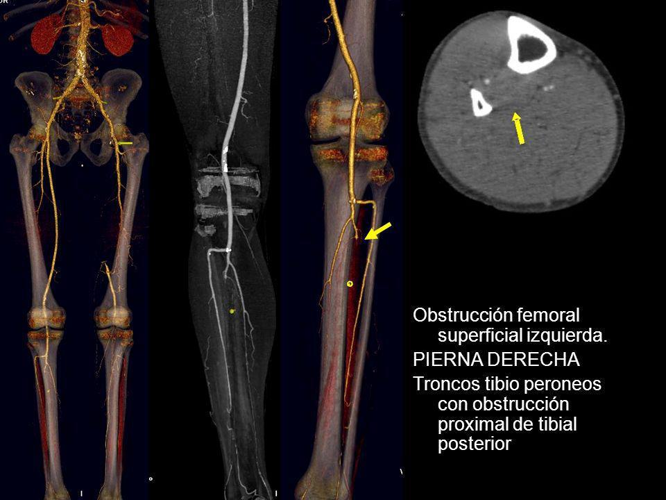 Obstrucción femoral superficial izquierda.
