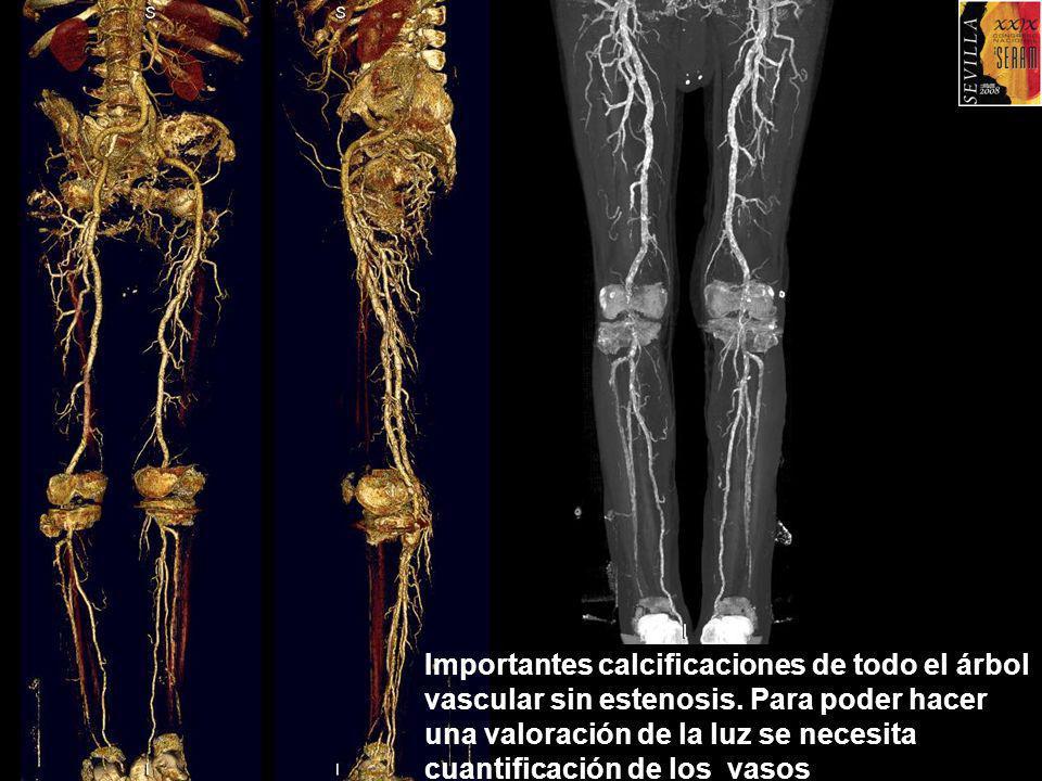 Importantes calcificaciones de todo el árbol vascular sin estenosis