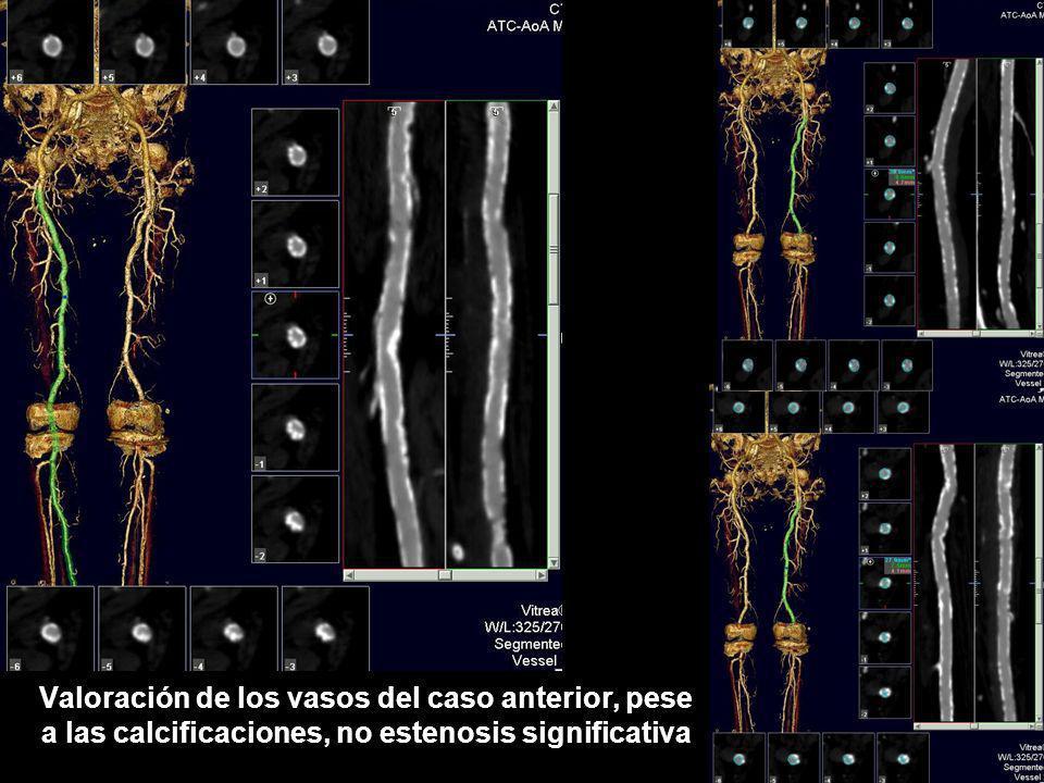 Valoración de los vasos del caso anterior, pese a las calcificaciones, no estenosis significativa
