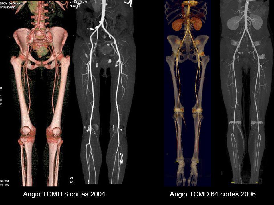 Angio TCMD 8 cortes 2004 Angio TCMD 64 cortes 2006