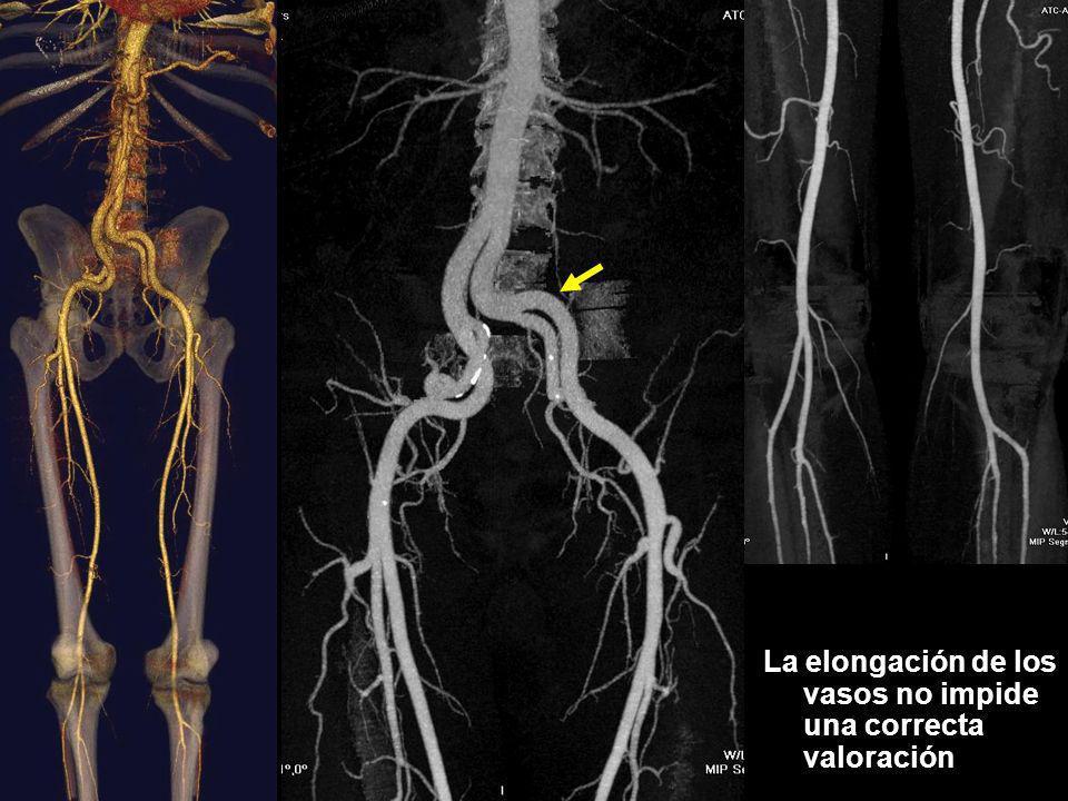 La elongación de los vasos no impide una correcta valoración