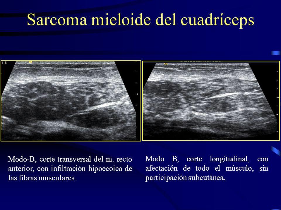Sarcoma mieloide del cuadríceps