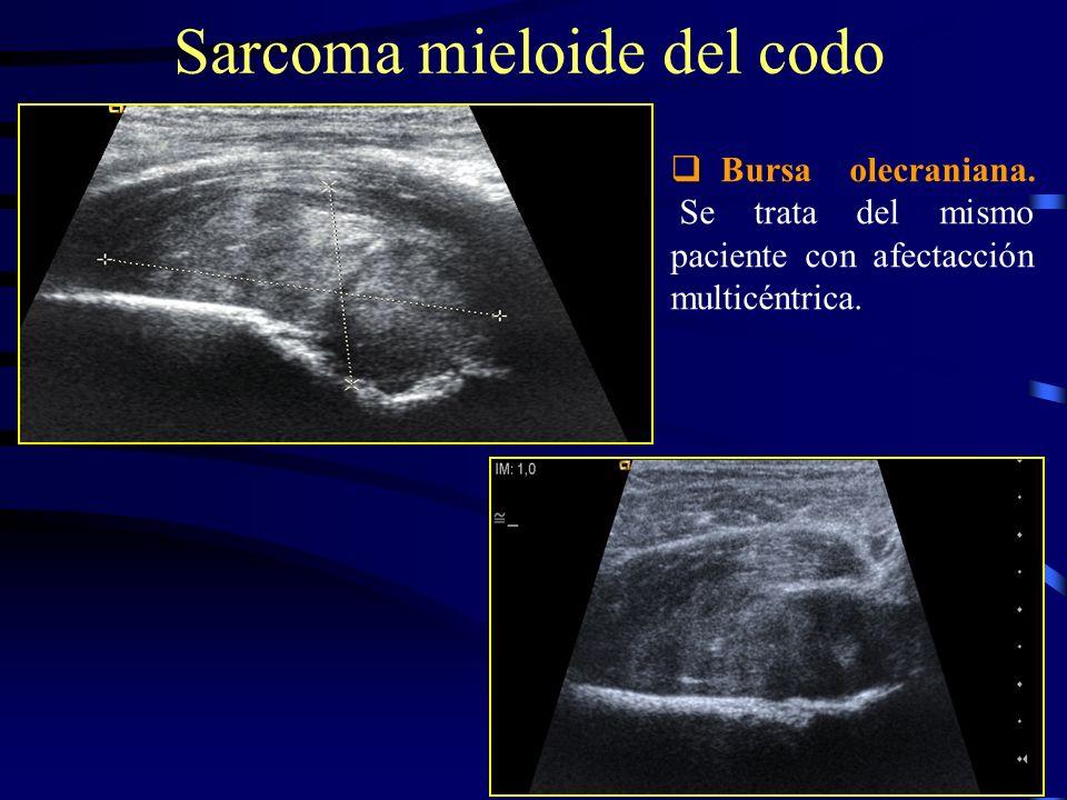 Sarcoma mieloide del codo