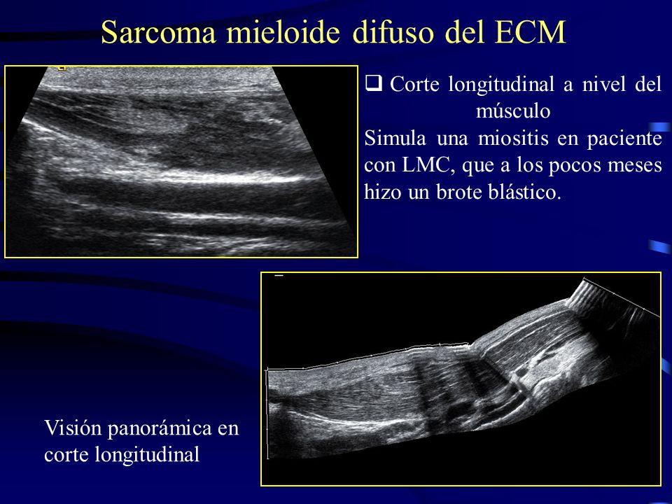 Sarcoma mieloide difuso del ECM