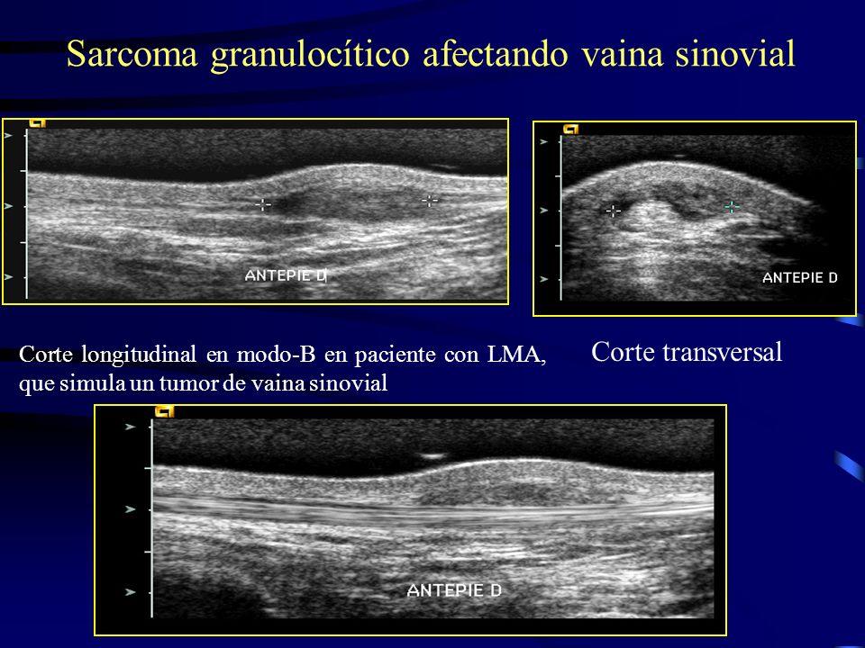 Sarcoma granulocítico afectando vaina sinovial