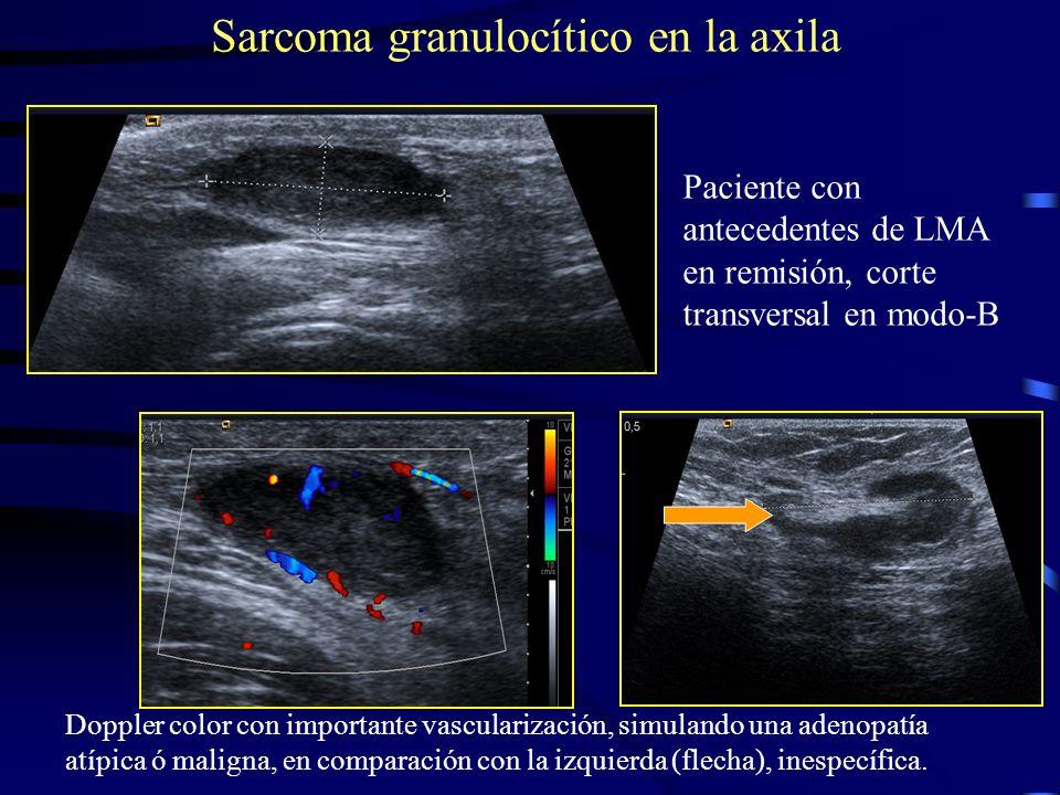 Sarcoma granulocítico en la axila