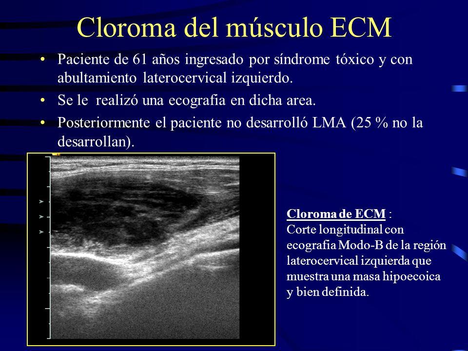 Cloroma del músculo ECM