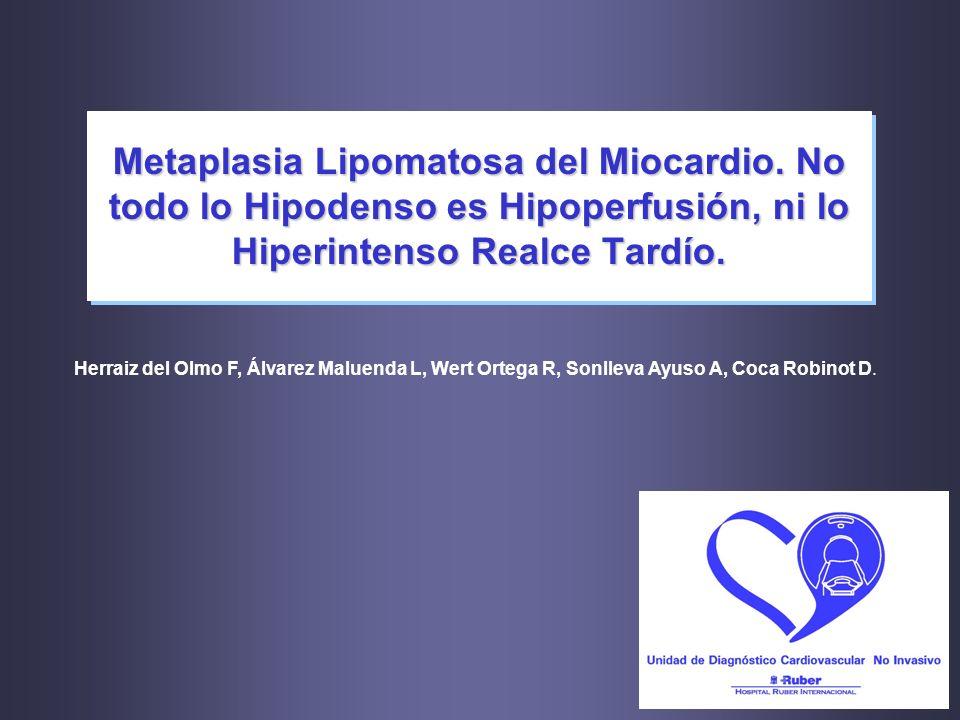 Metaplasia Lipomatosa del Miocardio