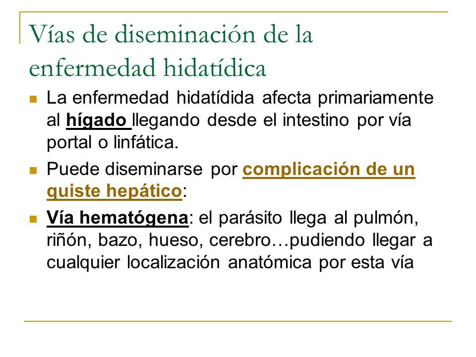Vías de diseminación de la enfermedad hidatídica