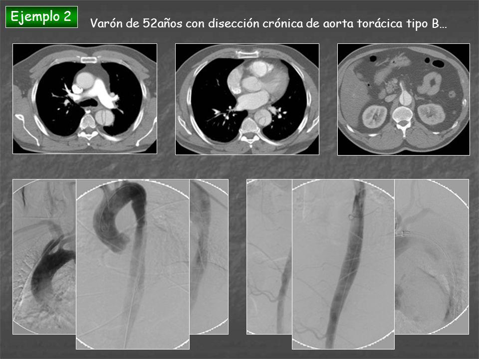 Ejemplo 2 Varón de 52años con disección crónica de aorta torácica tipo B…