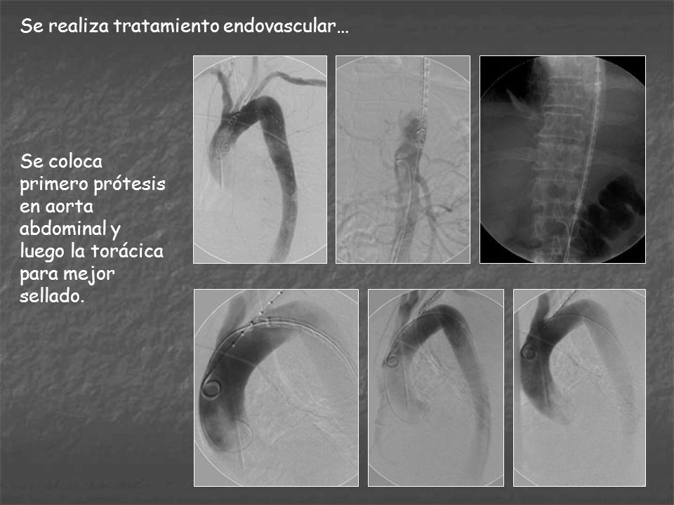 Se realiza tratamiento endovascular…