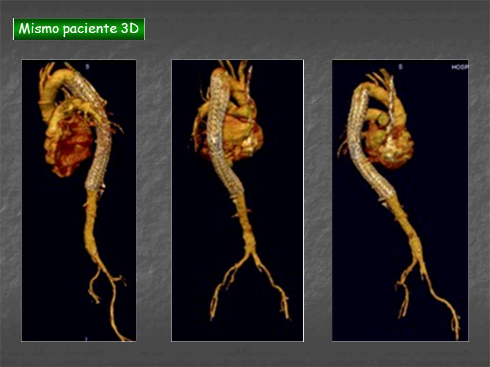 Mismo paciente 3D