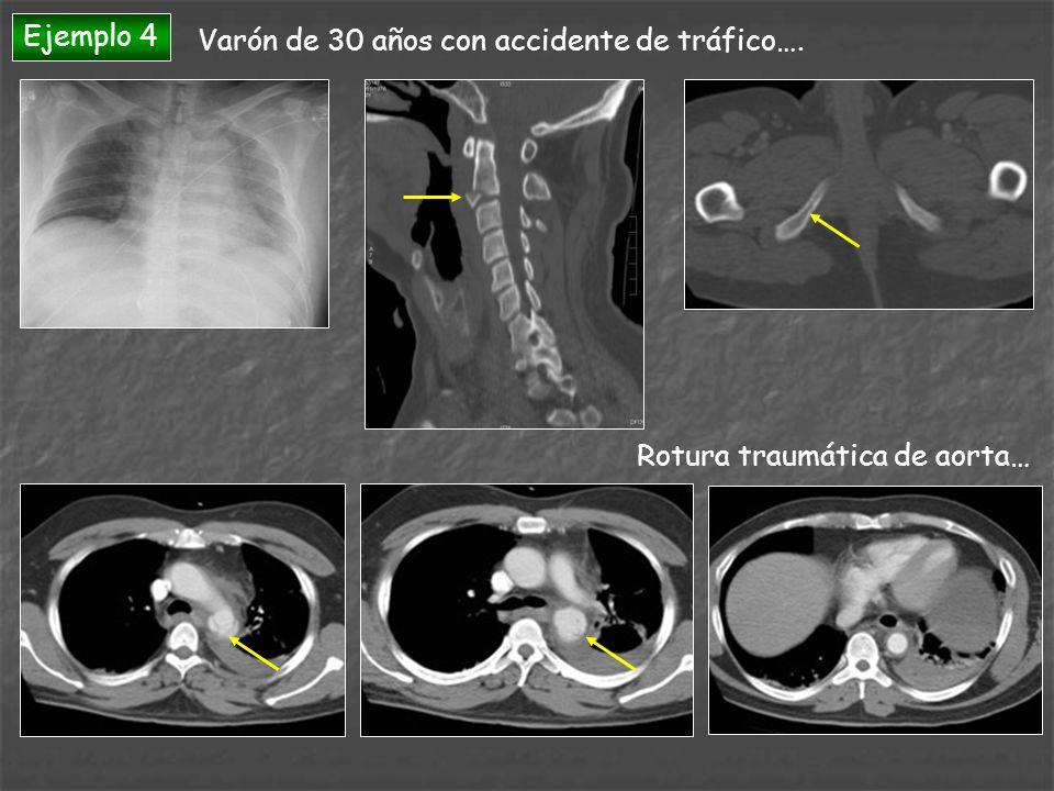Ejemplo 4 Varón de 30 años con accidente de tráfico…. Rotura traumática de aorta…