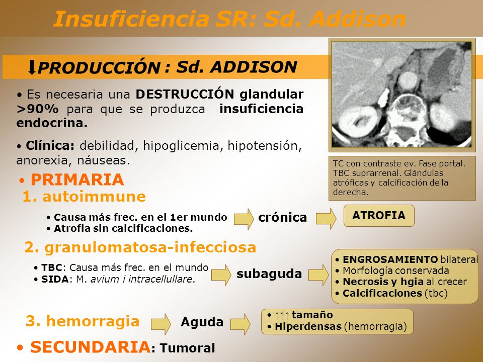 Insuficiencia SR: Sd. Addison