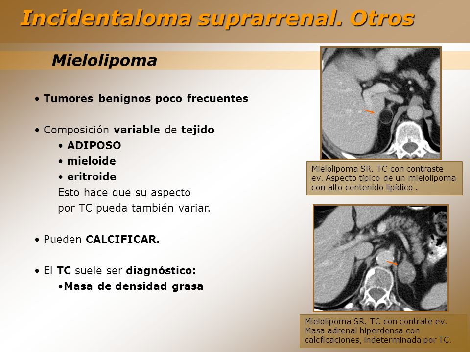 Incidentaloma suprarrenal. Otros