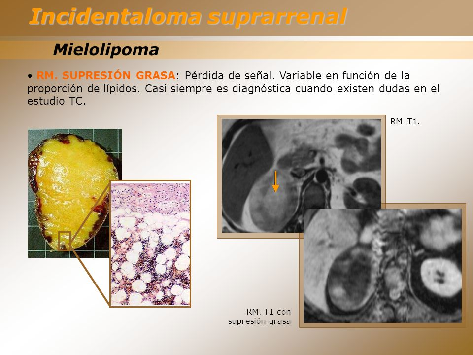 Incidentaloma suprarrenal