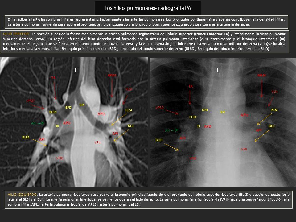 Los hilios pulmonares- radiografía PA