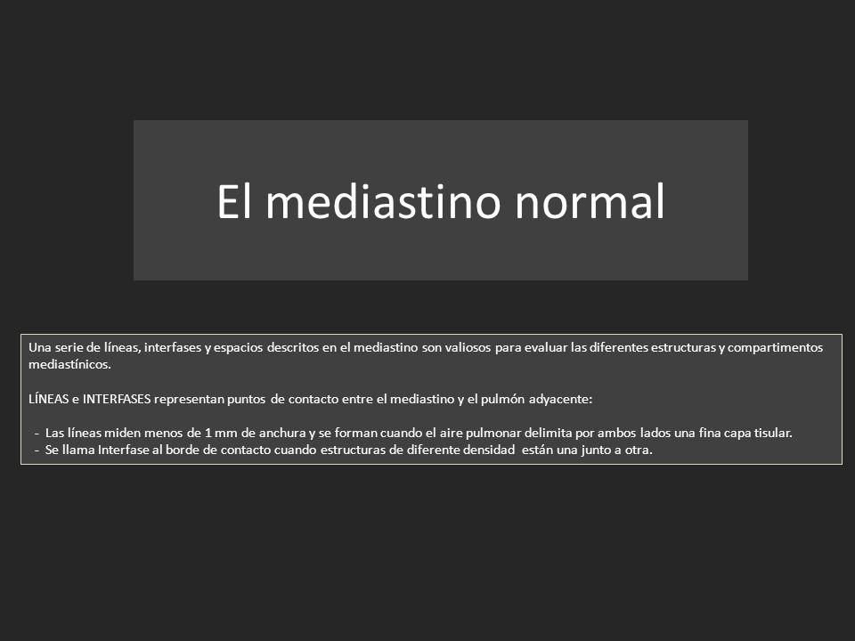 El mediastino normal