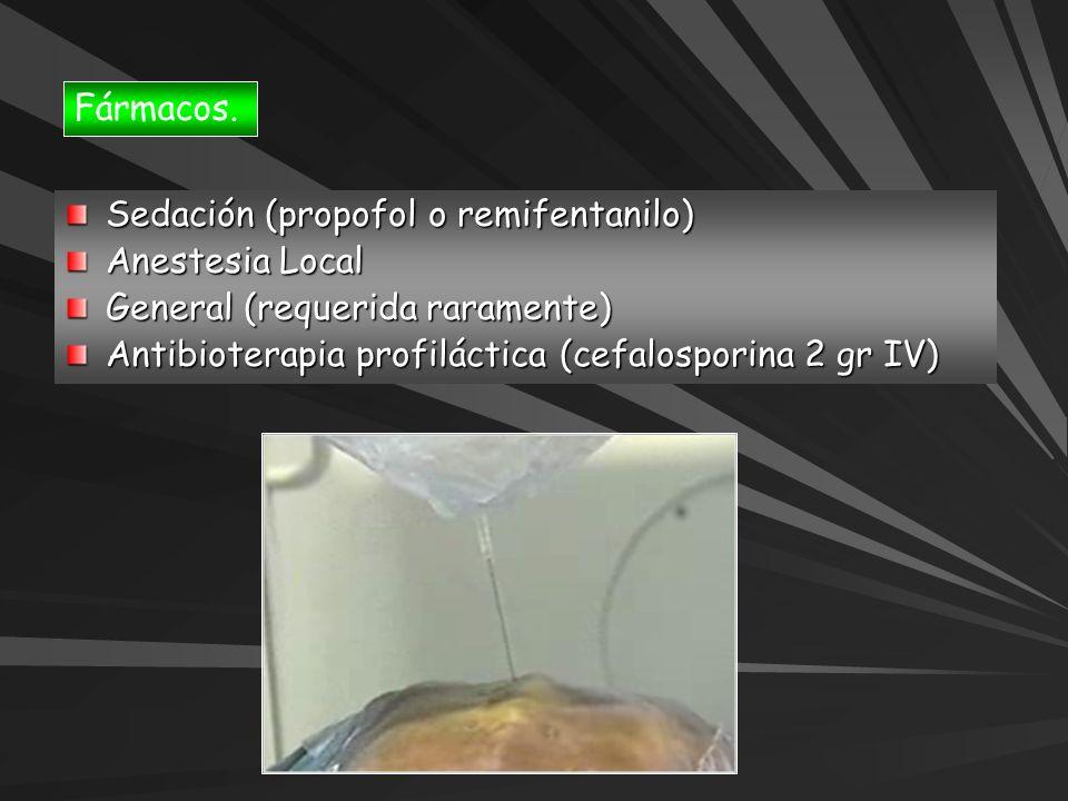 Fármacos. Sedación (propofol o remifentanilo) Anestesia Local.