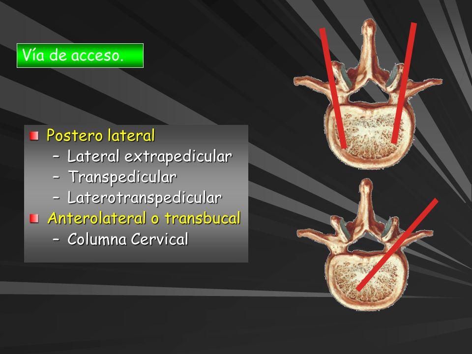Vía de acceso.Postero lateral. Lateral extrapedicular. Transpedicular. Laterotranspedicular. Anterolateral o transbucal.