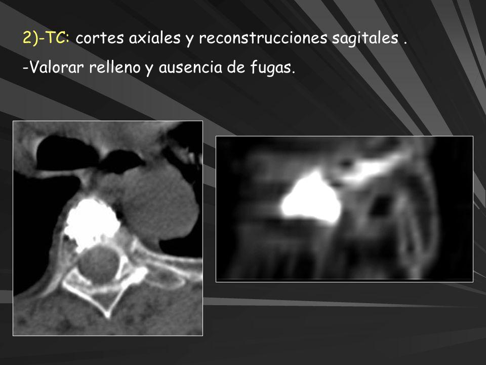 2)-TC: cortes axiales y reconstrucciones sagitales .