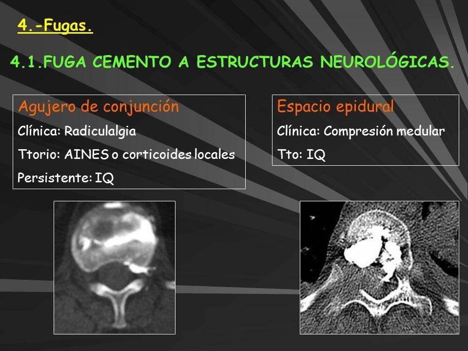 4.1.FUGA CEMENTO A ESTRUCTURAS NEUROLÓGICAS.