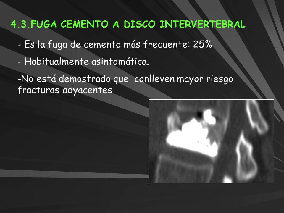 4.3.FUGA CEMENTO A DISCO INTERVERTEBRAL