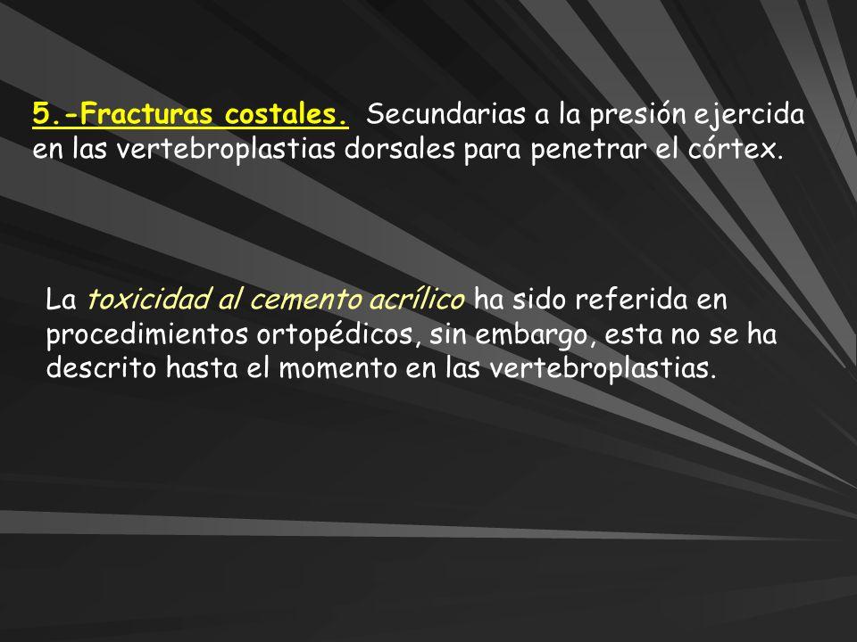 5.-Fracturas costales. Secundarias a la presión ejercida en las vertebroplastias dorsales para penetrar el córtex.