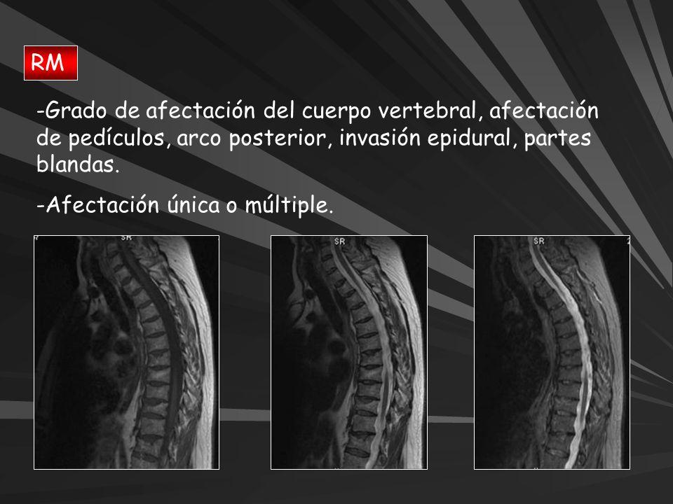 RM Grado de afectación del cuerpo vertebral, afectación de pedículos, arco posterior, invasión epidural, partes blandas.