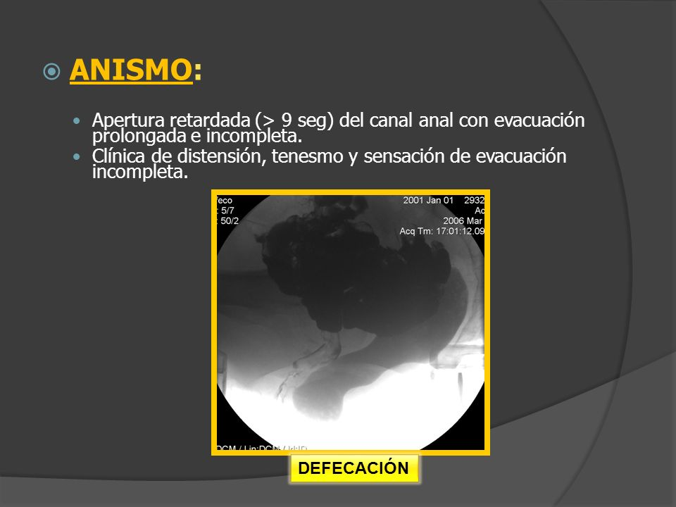 ANISMO: Apertura retardada (> 9 seg) del canal anal con evacuación prolongada e incompleta.