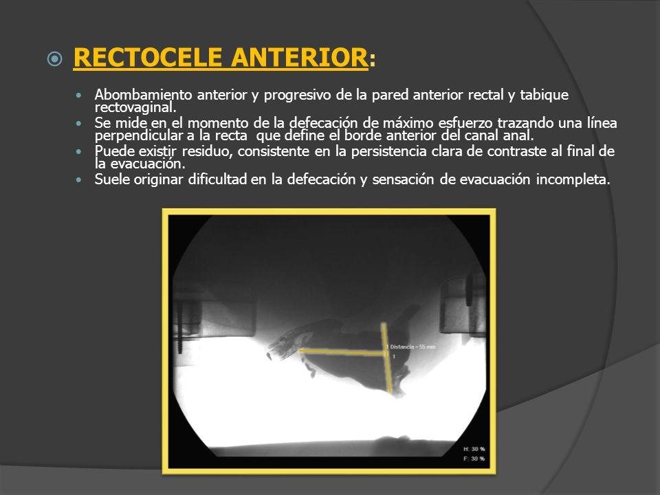 RECTOCELE ANTERIOR: Abombamiento anterior y progresivo de la pared anterior rectal y tabique rectovaginal.
