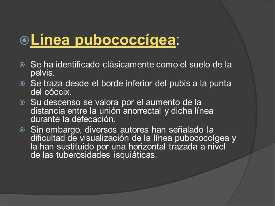 Línea pubococcígea: Se ha identificado clásicamente como el suelo de la pelvis. Se traza desde el borde inferior del pubis a la punta del cóccix.