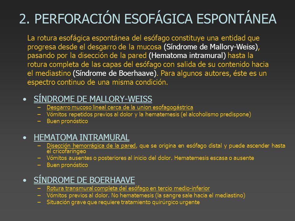 2. PERFORACIÓN ESOFÁGICA ESPONTÁNEA