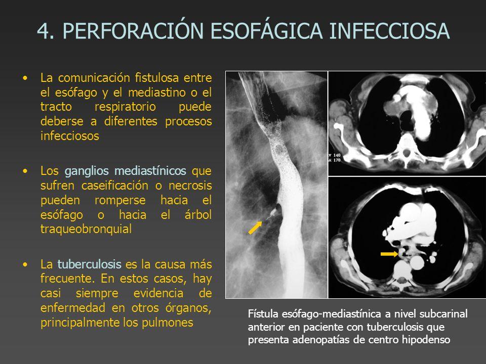 4. PERFORACIÓN ESOFÁGICA INFECCIOSA