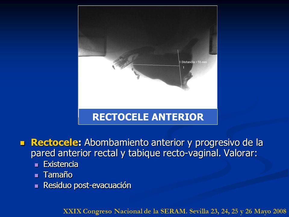 RECTOCELE ANTERIOR Rectocele: Abombamiento anterior y progresivo de la pared anterior rectal y tabique recto-vaginal. Valorar: