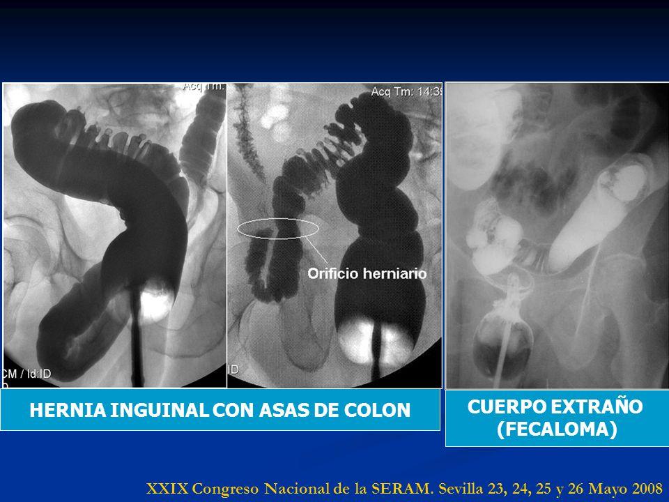 HERNIA INGUINAL CON ASAS DE COLON