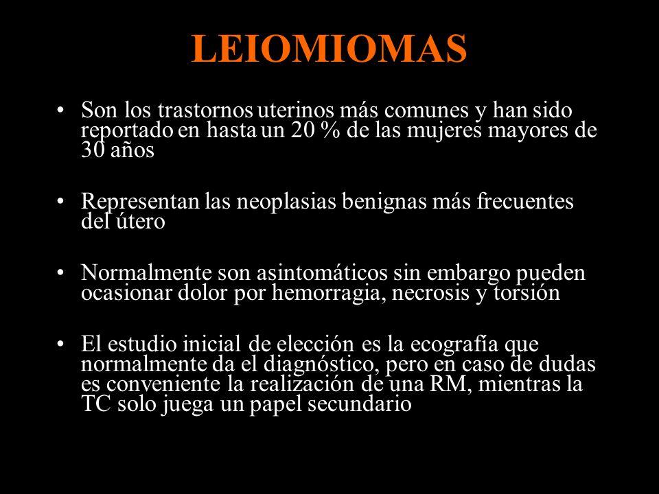 LEIOMIOMAS Son los trastornos uterinos más comunes y han sido reportado en hasta un 20 % de las mujeres mayores de 30 años.