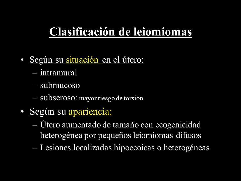 Clasificación de leiomiomas