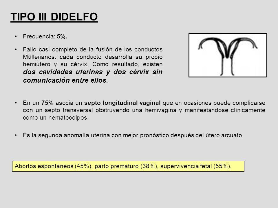 TIPO III DIDELFO Frecuencia: 5%.