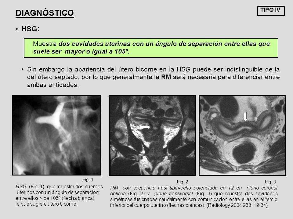 TIPO IV DIAGNÓSTICO. HSG: Muestra dos cavidades uterinas con un ángulo de separación entre ellas que suele ser mayor o igual a 105º.
