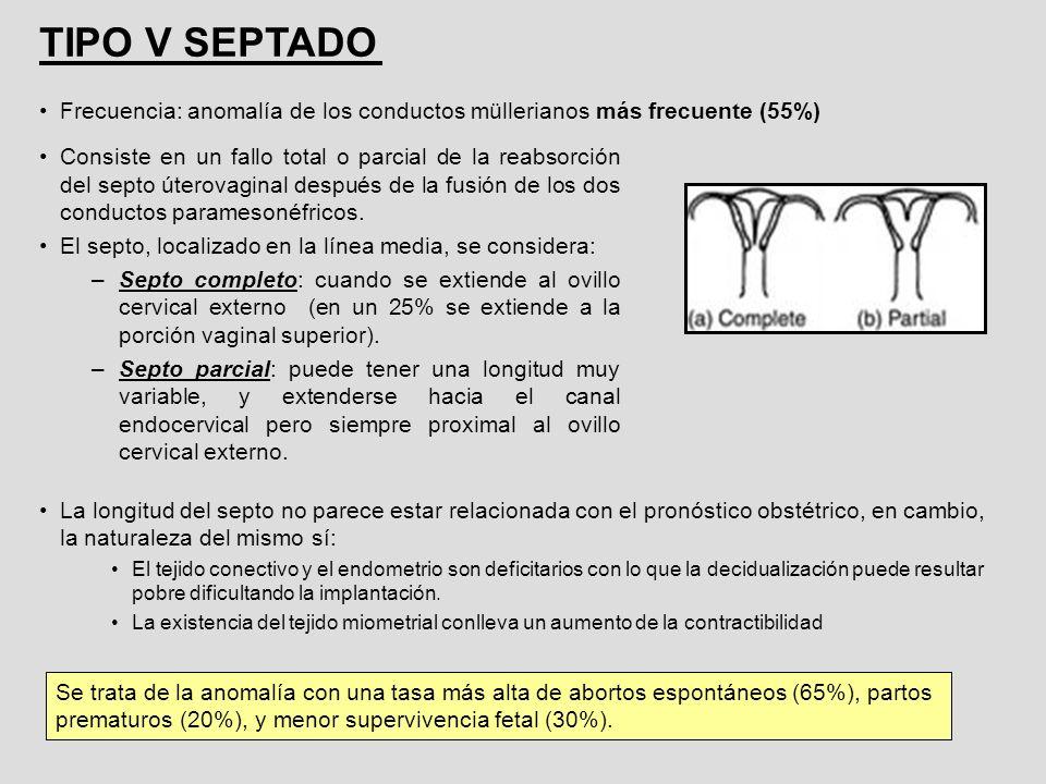 TIPO V SEPTADO Frecuencia: anomalía de los conductos müllerianos más frecuente (55%)